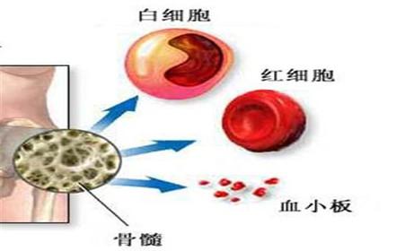 再生障碍性贫血的临床表现是什么